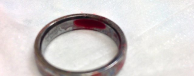 How To Remove A Tight Wedding Ring With Windex